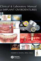9780813808819-0813808812-Clinical and Laboratory Manual of Implant Overdentures