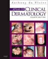 9780702034213-0702034215-Atlas of Clinical Dermatology (du Vivier, Atlas of Clinical Dermatology)