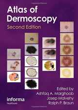 9780415458955-0415458951-An Atlas of Dermoscopy