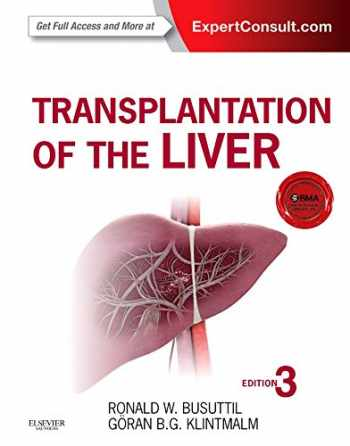 9781455702688-1455702684-Transplantation of the Liver
