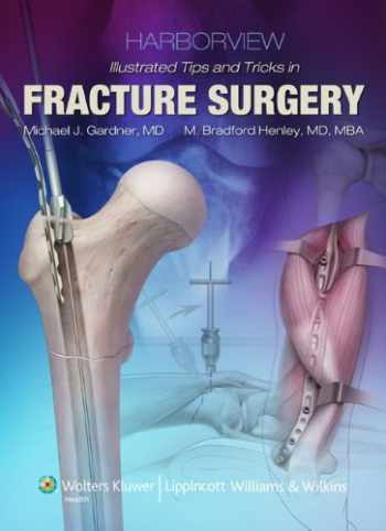 9781605470559-1605470554-Harborview Illustrated Tips and Tricks in Fracture Surgery