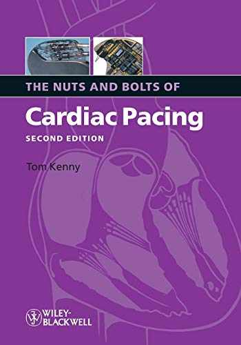 9781405184038-1405184035-The Nuts and Bolts of Cardiac Pacing 2nd Edition by Kenny, Tom (2008) Paperback