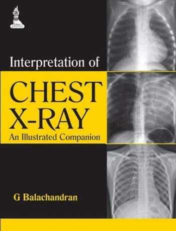 9789351521723-9351521729-Interpretation of Chest X-Ray: An Illustrated Companion
