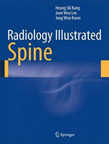9783642356285-3642356281-Radiology Illustrated: Spine