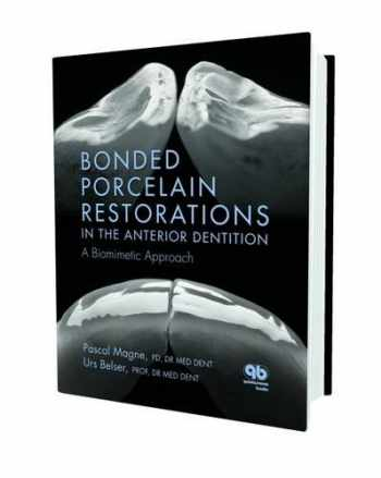 9780867154221-0867154225-Bonded Porcelain Restorations in the Anterior Dentition: A Biomimetic Approach