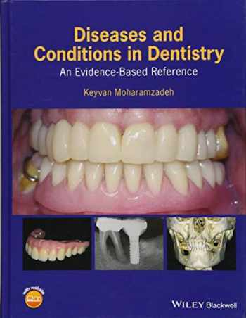 9781119312031-1119312035-Diseases and Conditions in Dentistry: An Evidence-Based Reference