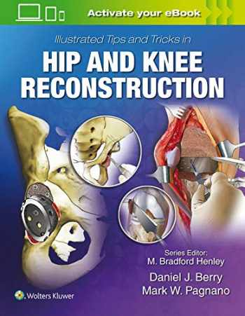 9781496392060-149639206X-Illustrated Tips and Tricks in Hip and Knee Reconstructive and Replacement Surgery