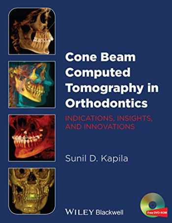 9781118448489-1118448480-Cone Beam Computed Tomography in Orthodontics: Indications, Insights, and Innovations