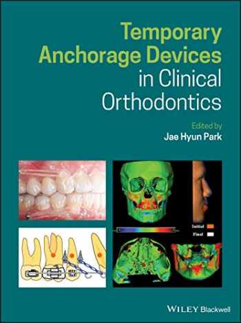 9781119513476-1119513472-Temporary Anchorage Devices in Clinical Orthodontics