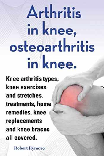 9781909151857-1909151858-Arthritis in knee, osteoarthritis in knee. Knee arthritis types, knee exercises and stretches, treatments, home remedies, knee replacements and knee braces all covered.