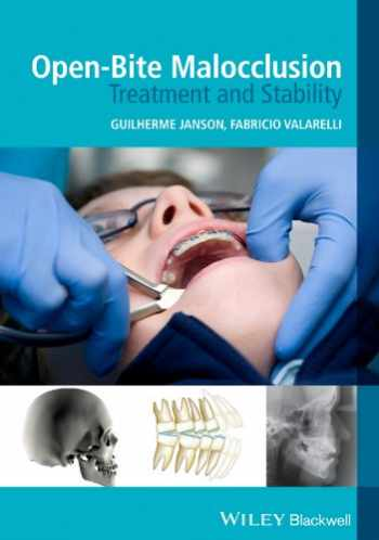 9781118335987-1118335988-Open-Bite Malocclusion: Treatment and Stability